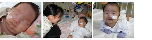 手術前0~1歳のころ